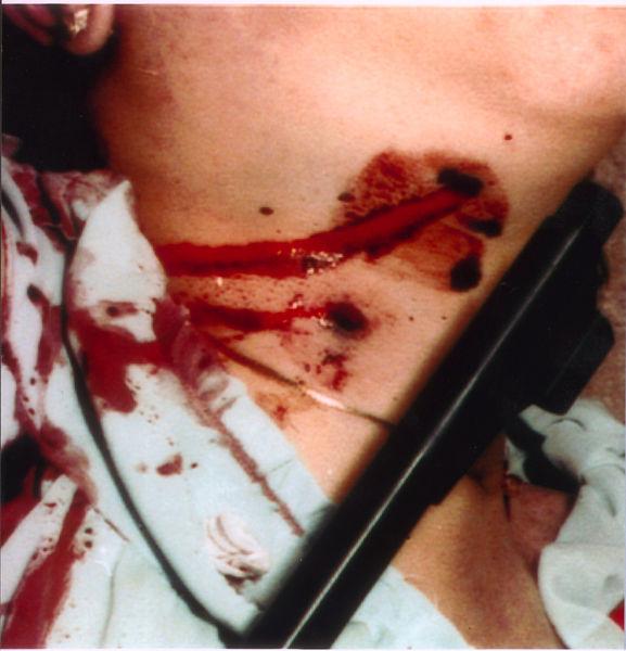 http://www.murderpedia.org/male.B/images/bamber_jeremy/evidence.jpg